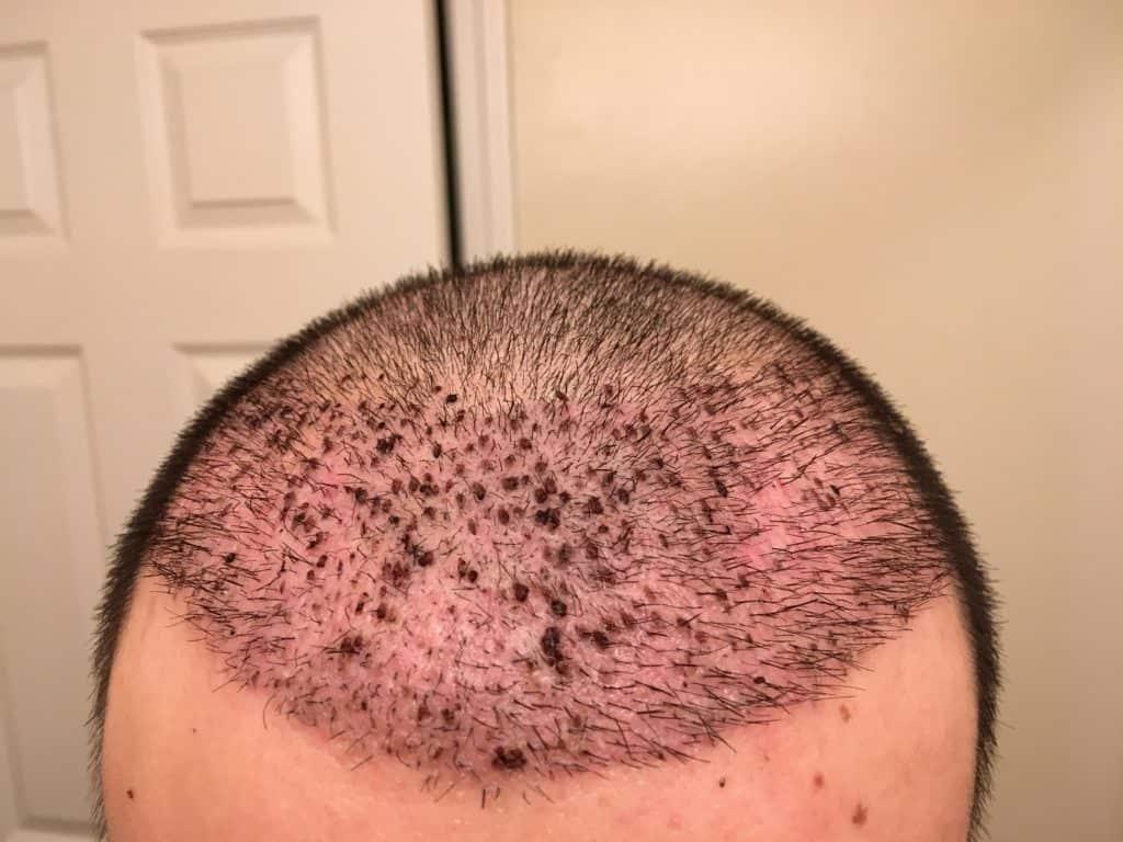 Comment dormir après une greffe de cheveux?