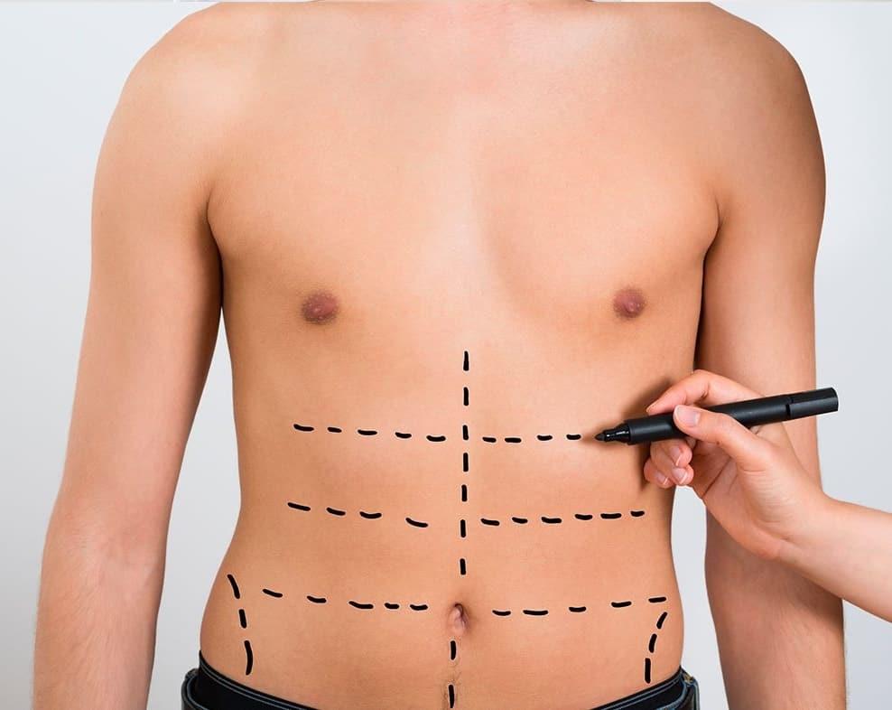 Comment enlever la graisse du ventre sans chirurgie?