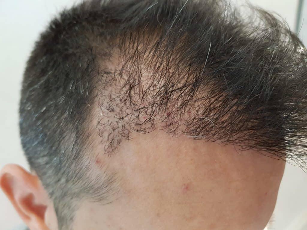 Quand porter une casquette après une greffe de cheveux?